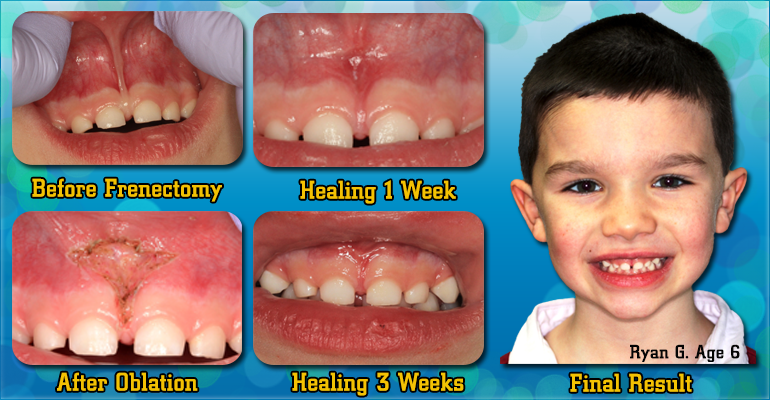 Frenectomy-Procedure