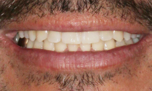 After photo of Six Month Smiles Patient