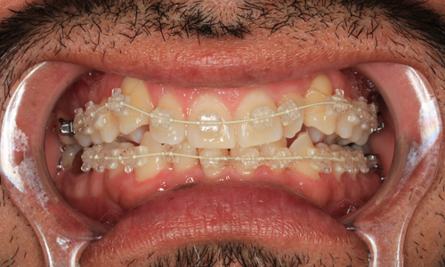Photo of Six Month Smiles Patient