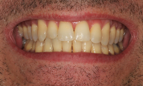 After photo Six Month Smiles