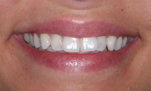 Six Month Smiles Patient Before